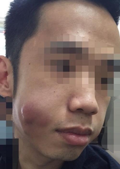 Chuộng thẩm mỹ nhiều thiếu nữ ở Hà Nội biến dạng sau một đêm - ảnh 13