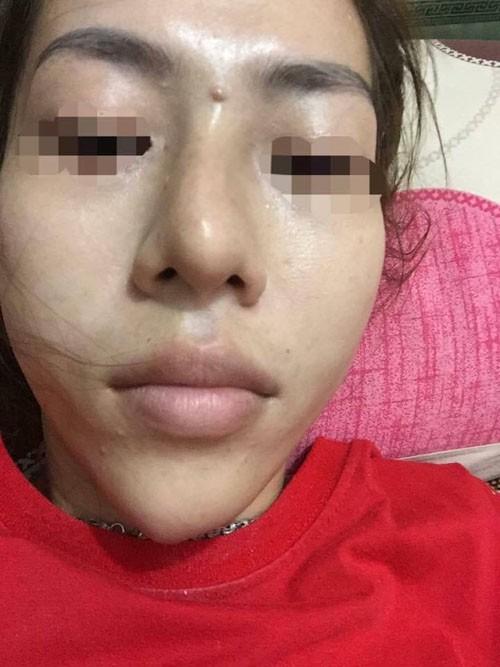 Chuộng thẩm mỹ nhiều thiếu nữ ở Hà Nội biến dạng sau một đêm - ảnh 9