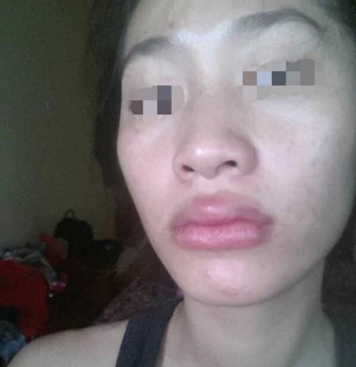 Chuộng thẩm mỹ nhiều thiếu nữ ở Hà Nội biến dạng sau một đêm - ảnh 7