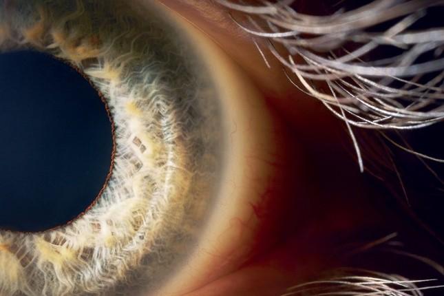 Mắt bionic – cơ hội mới cho những người mù do bị chấn thương  - ảnh 1