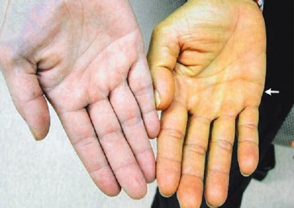6 dấu hiệu nguy hiểm cảnh báo bệnh gan bạn nên biết - ảnh 1