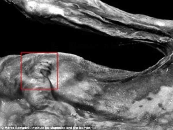Phát hiện hình xăm cổ đại nhất thế giới trên xác ướp 5.300 tuổi - ảnh 3