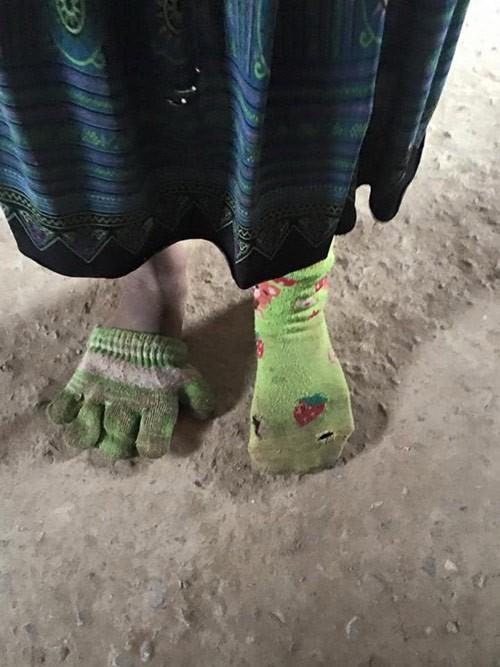 Ảnh bé gái dùng găng tay làm tất chân khiến cộng đồng mạng nhói lòng
