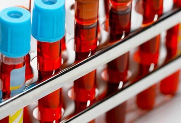 Phát hiện mới về nhóm máu và nguy cơ bệnh tật - ảnh 1