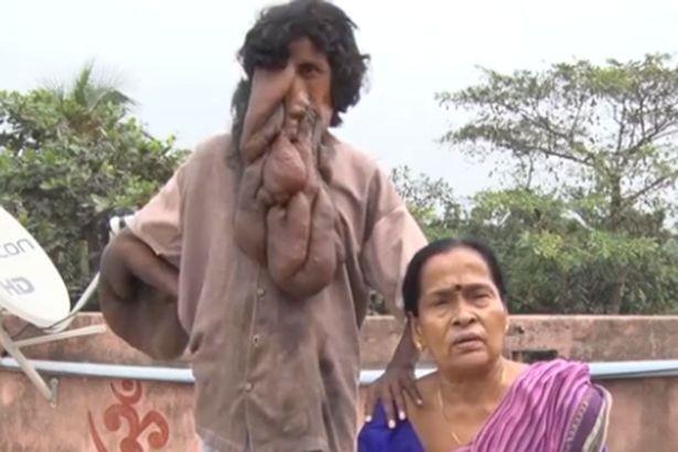Kỳ lạ người đàn ông mặt voi tại Ấn Độ được coi như vị thần - ảnh 1