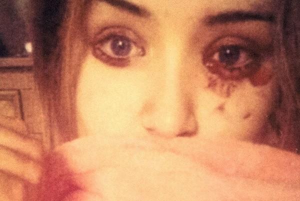 Mắc bệnh lạ cô gái chảy máu mắt 5 lần một ngày - ảnh 1