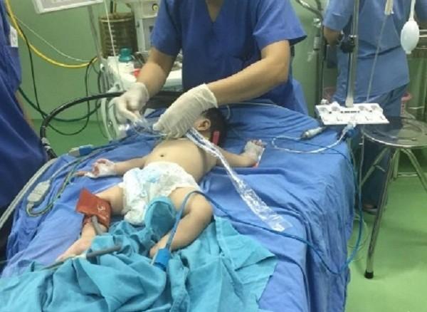 Kỳ lạ bé 4 tháng tuổi có 2 bộ phận sinh dục nam - nữ - ảnh 1
