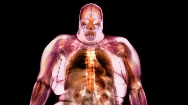 Ô nhiễm không khí là tác nhân gây nên bệnh béo phì? - ảnh 2