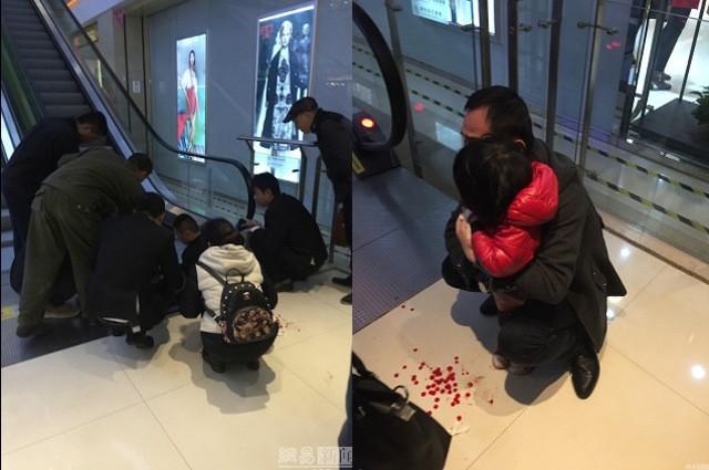 Trung Quốc: Bé gái 2 tuổi bị thang cuốn nghiến đứt ngón tay - ảnh 1