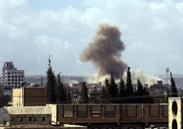Bệnh viện Yemen bị không kích, hơn chục người thương vong - ảnh 2