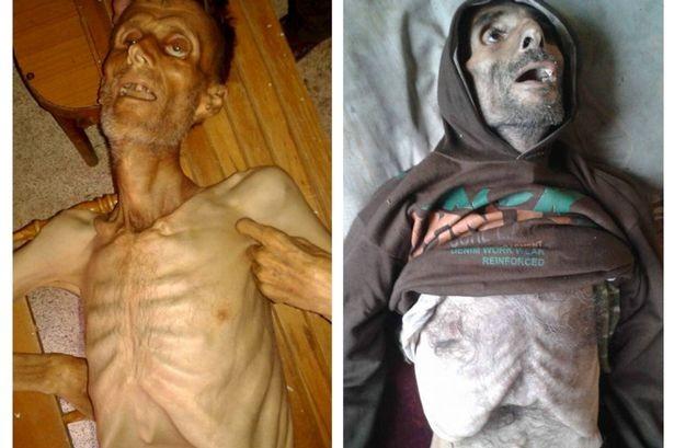 """Nạn đói biến người dân Syria thành """"những bộ xương khô"""" - ảnh 1"""