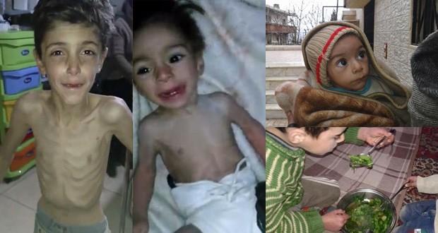 """Nạn đói biến người dân Syria thành """"những bộ xương khô"""" - ảnh 3"""