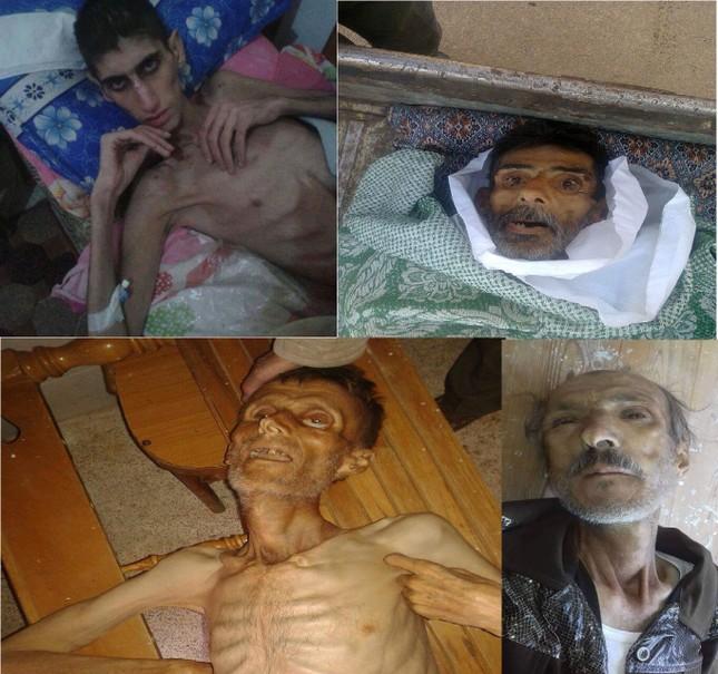 """Nạn đói biến người dân Syria thành """"những bộ xương khô"""" - ảnh 4"""
