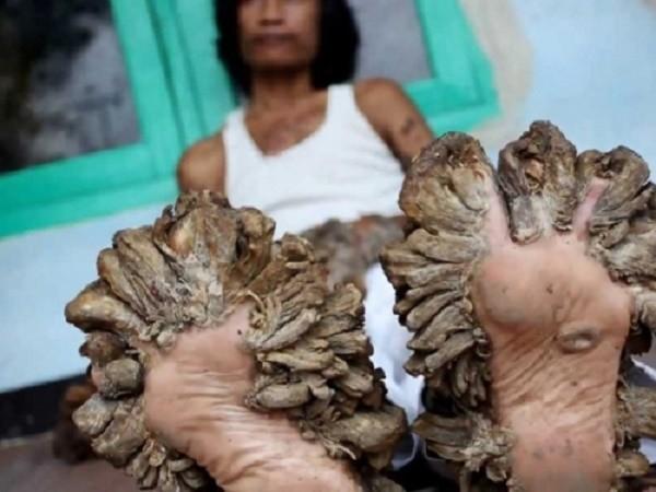 10 chứng bệnh kỳ quái nhất mà con người mắc phải - ảnh 1