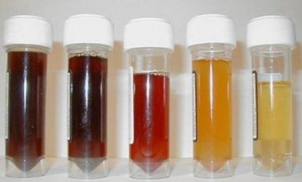 Màu của nước tiểu cảnh báo bệnh trong cơ thể - ảnh 1