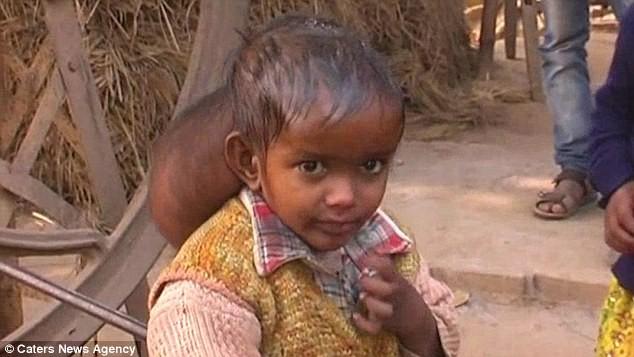 Xót thương trước hình ảnh cô bé 'hai đầu' ở Ấn Độ - ảnh 2