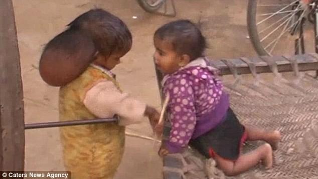 Xót thương trước hình ảnh cô bé 'hai đầu' ở Ấn Độ - ảnh 3