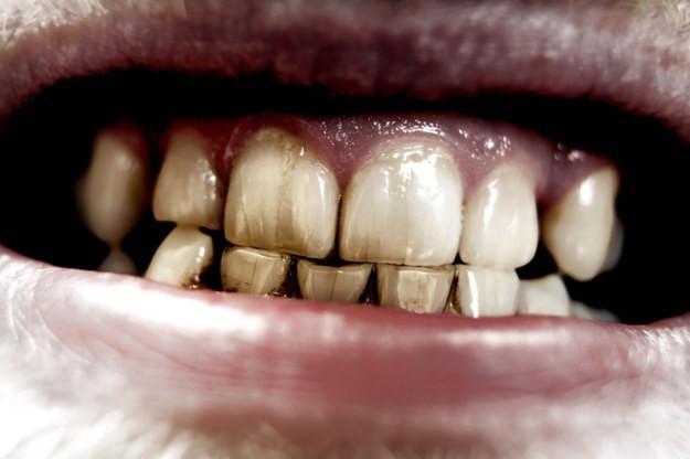 Những điều đơn giản bạn phải biết để tự bảo vệ răng miệng - ảnh 1