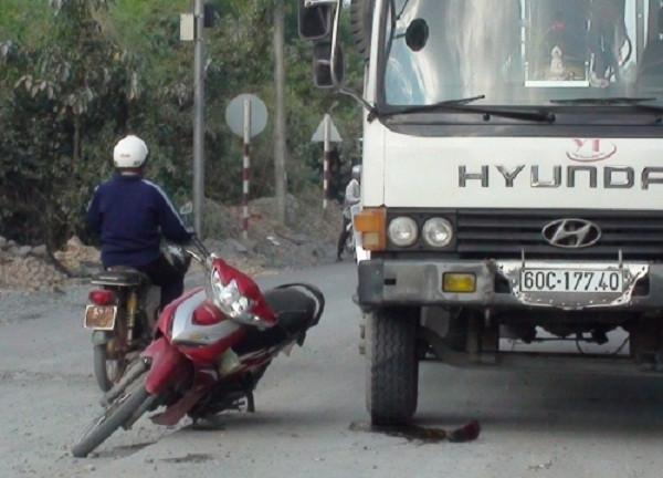 Tránh phần đường thi công, bất ngờ bị xe cán nát chân - ảnh 1
