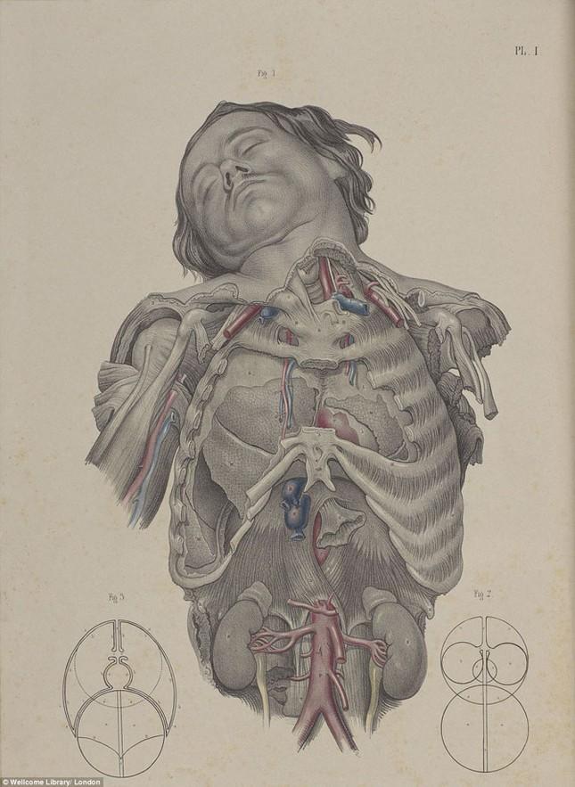 Lạnh gáy với những ca phẫu thuật thời không có thuốc tê - ảnh 12