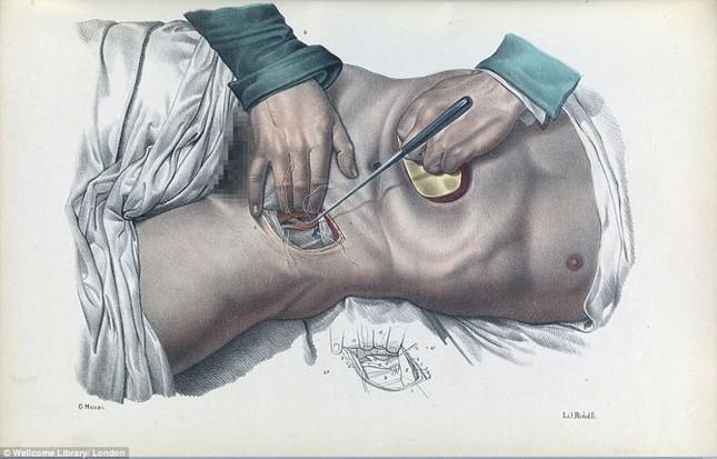 Lạnh gáy với những ca phẫu thuật thời không có thuốc tê - ảnh 6