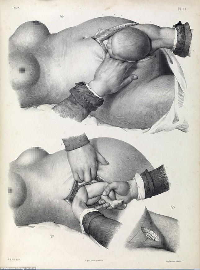 Lạnh gáy với những ca phẫu thuật thời không có thuốc tê - ảnh 4