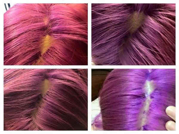 Rùng mình cô gái nhuộm tóc bị 'nổ da đầu' và tóc rụng từng mảng - ảnh 1