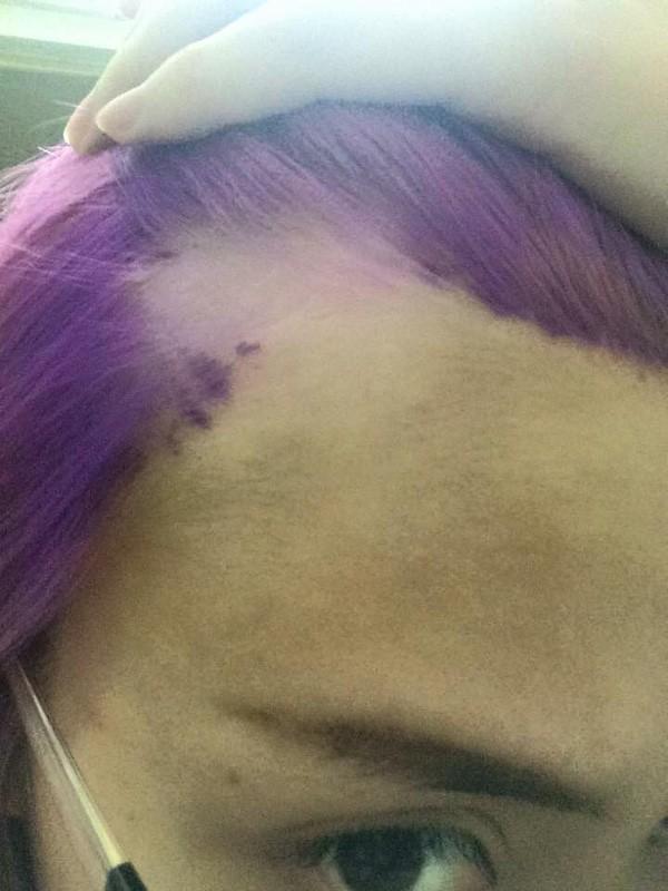Rùng mình cô gái nhuộm tóc bị 'nổ da đầu' và tóc rụng từng mảng - ảnh 2