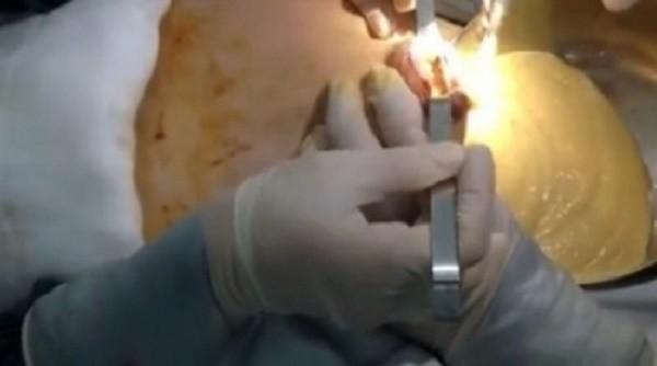 Hiểm họa khôn lường từ trào lưu bơm chất làm đầy vòng 1 - ảnh 1