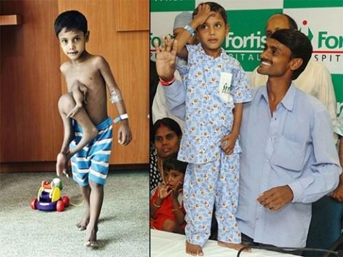 Xót xa cậu bé bị coi 'hiện thân quỷ dữ' vì đôi chân mọc ở ngực - ảnh 5