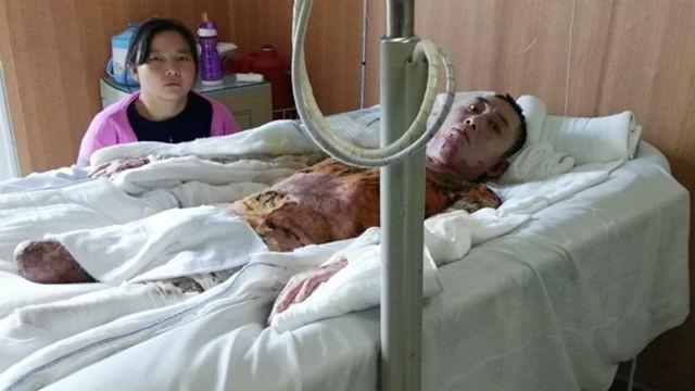 Cty Nhà nước 'gợi ý' cho công nhân chết sớm để đỡ tốn viện phí - ảnh 1