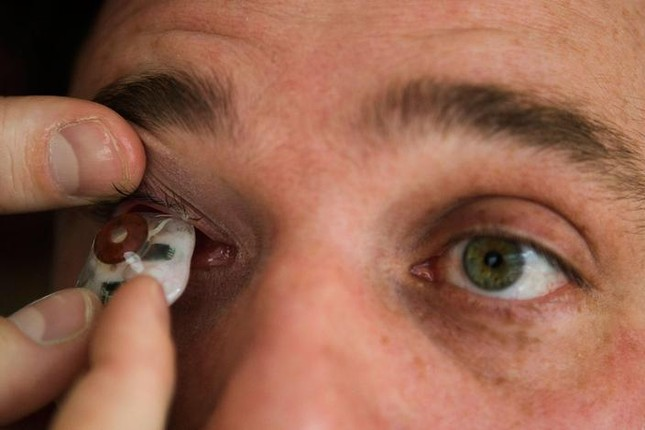 Người đàn ông có khả năng quay phim, chụp ảnh bằng 'mắt' - ảnh 3
