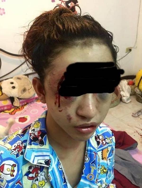 Vì bát cẩn cô gái bị trộm lẻn vào đánh 'nát' khuôn mặt  - ảnh 1