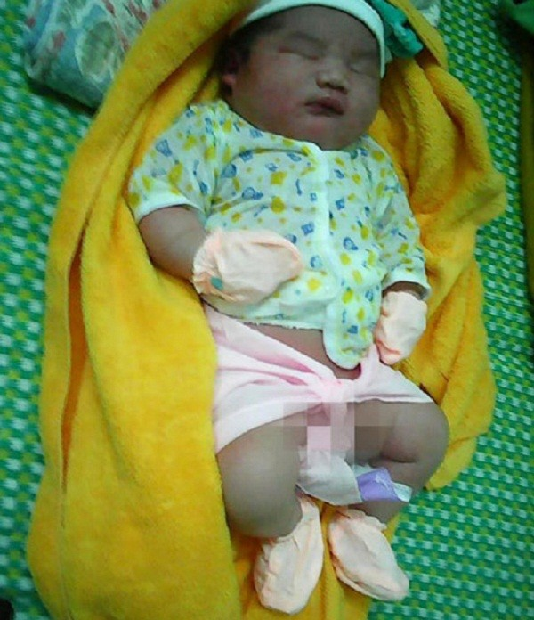 Bé trai sơ sinh có cân nặng 'khủng' 5,1kg ở Quảng Nam - ảnh 1