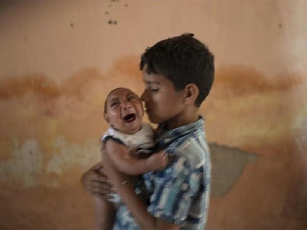Kinh hãi virus gây tật đầu nhỏ ở trẻ sơ sinh đang lan rộng - ảnh 1