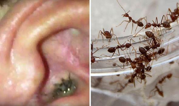 Hàng chục con kiến làm tổ trong tai bé gái mà không hay biết - ảnh 1