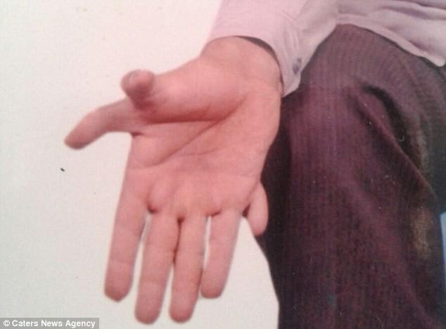 Kinh ngạc người đàn ông có tổng cộng… 28 ngón tay, ngón chân - ảnh 3