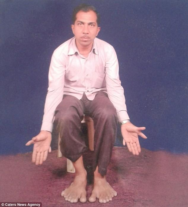 Kinh ngạc người đàn ông có tổng cộng… 28 ngón tay, ngón chân - ảnh 1