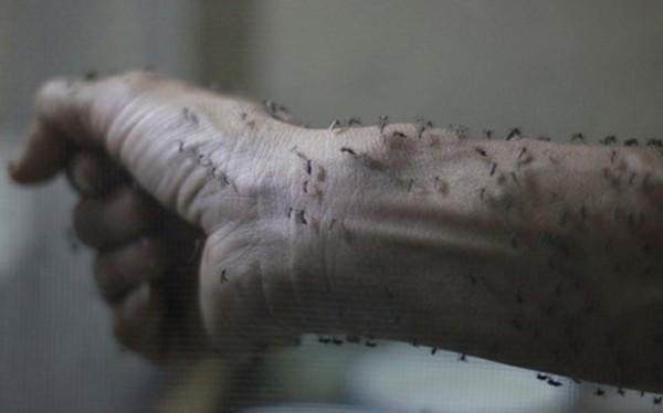 Những bức ảnh khiến bạn ám ảnh về dịch bệnh 'Zika đầu nhỏ' - ảnh 6