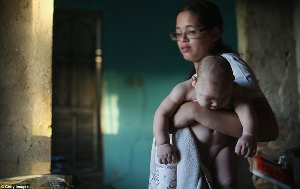 Những bức ảnh khiến bạn ám ảnh về dịch bệnh 'Zika đầu nhỏ' - ảnh 4