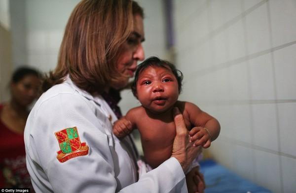 Những bức ảnh khiến bạn ám ảnh về dịch bệnh 'Zika đầu nhỏ' - ảnh 12