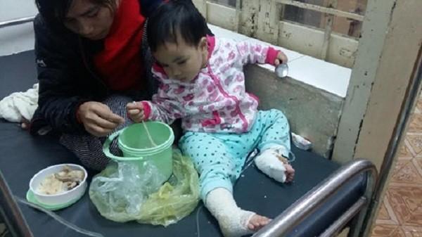 Bé gái 17 tháng tuổi bỏng nặng do túi sưởi ấm phát nổ - ảnh 1