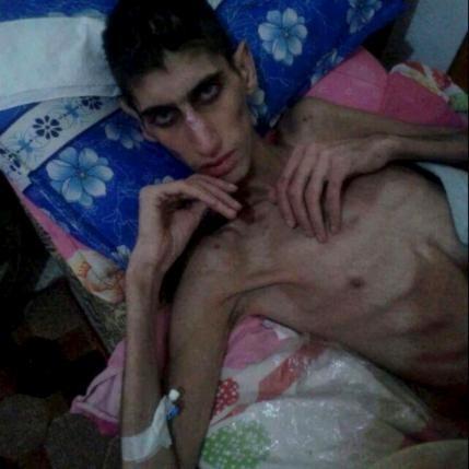Người Syria ăn cỏ cây sống qua ngày - ảnh 2