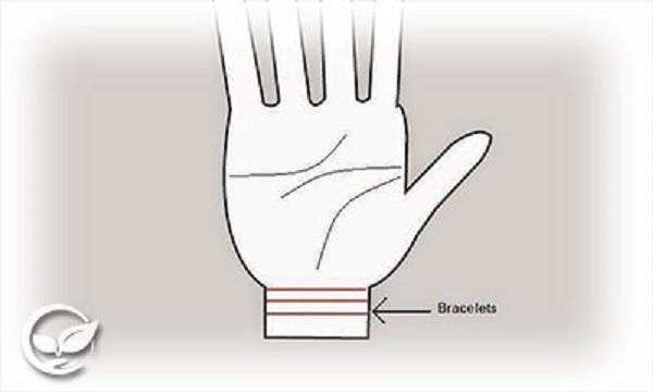 Số vòng hằn trên cổ tay cảnh báo bệnh, tuổi thọ của bạn - ảnh 1