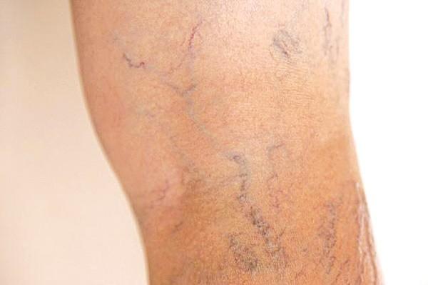 Chân xuất hiện nhiều gân xanh: Nguy cơ mắc bệnh nguy hiểm - ảnh 1