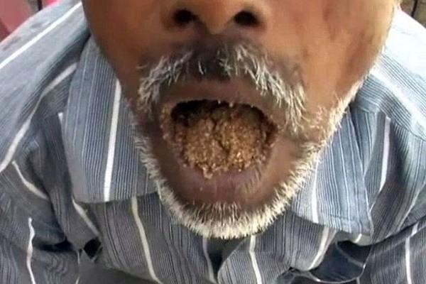 Kì lạ người đàn ông có sở thích ăn cát sỏi suốt 25 năm - ảnh 1