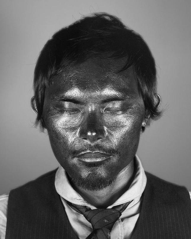 Bộ ảnh gây sốc về tác hại của ánh nắng mặt trời lên da người - ảnh 3