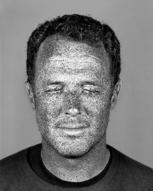 Bộ ảnh gây sốc về tác hại của ánh nắng mặt trời lên da người - ảnh 4