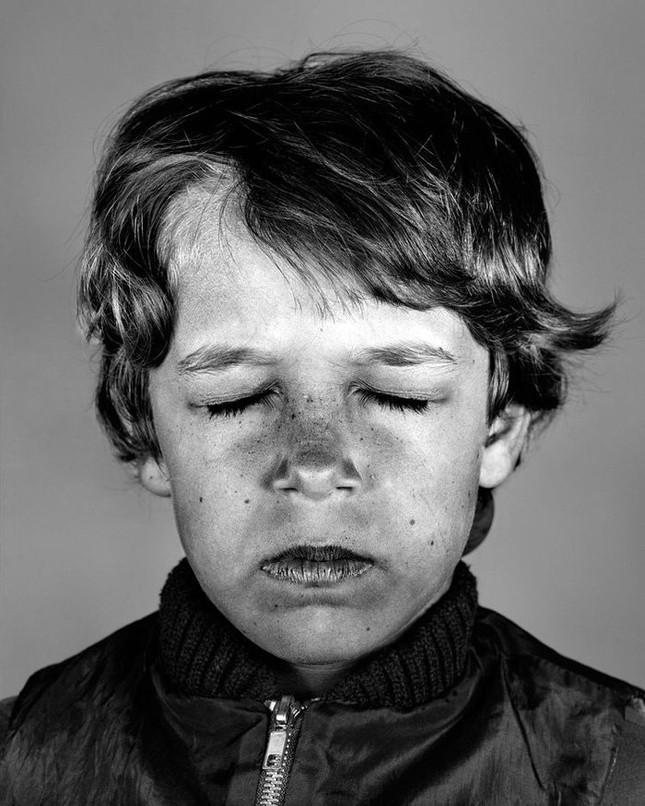 Bộ ảnh gây sốc về tác hại của ánh nắng mặt trời lên da người - ảnh 7