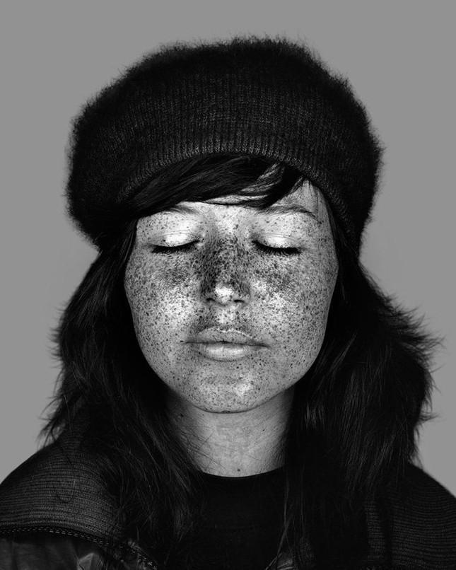 Bộ ảnh gây sốc về tác hại của ánh nắng mặt trời lên da người - ảnh 9